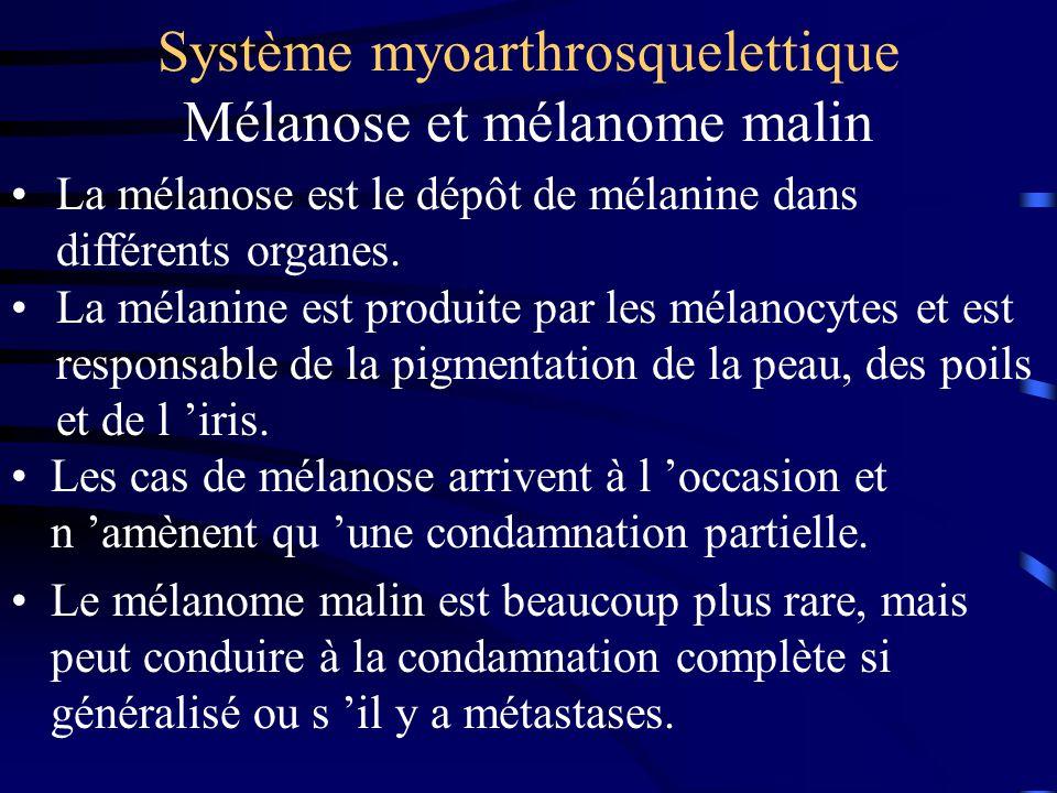 Système myoarthrosquelettique Mélanose et mélanome malin