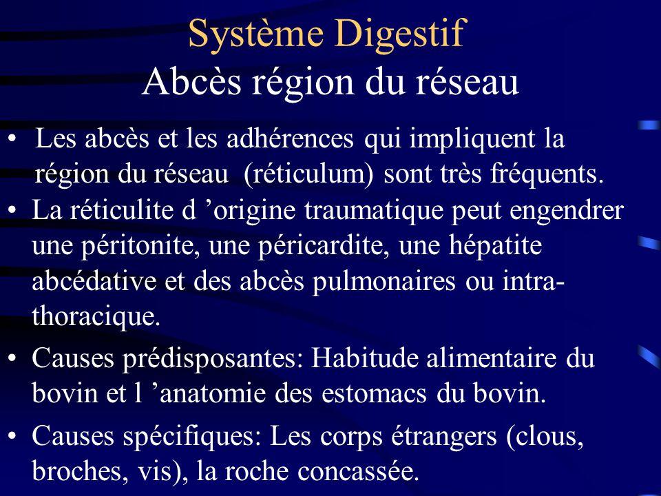 Système Digestif Abcès région du réseau