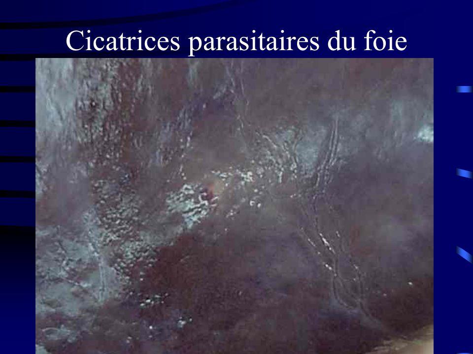 Cicatrices parasitaires du foie