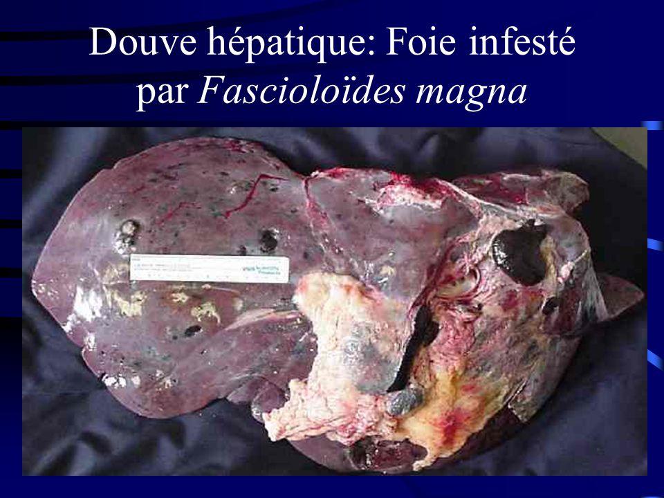Douve hépatique: Foie infesté par Fascioloïdes magna
