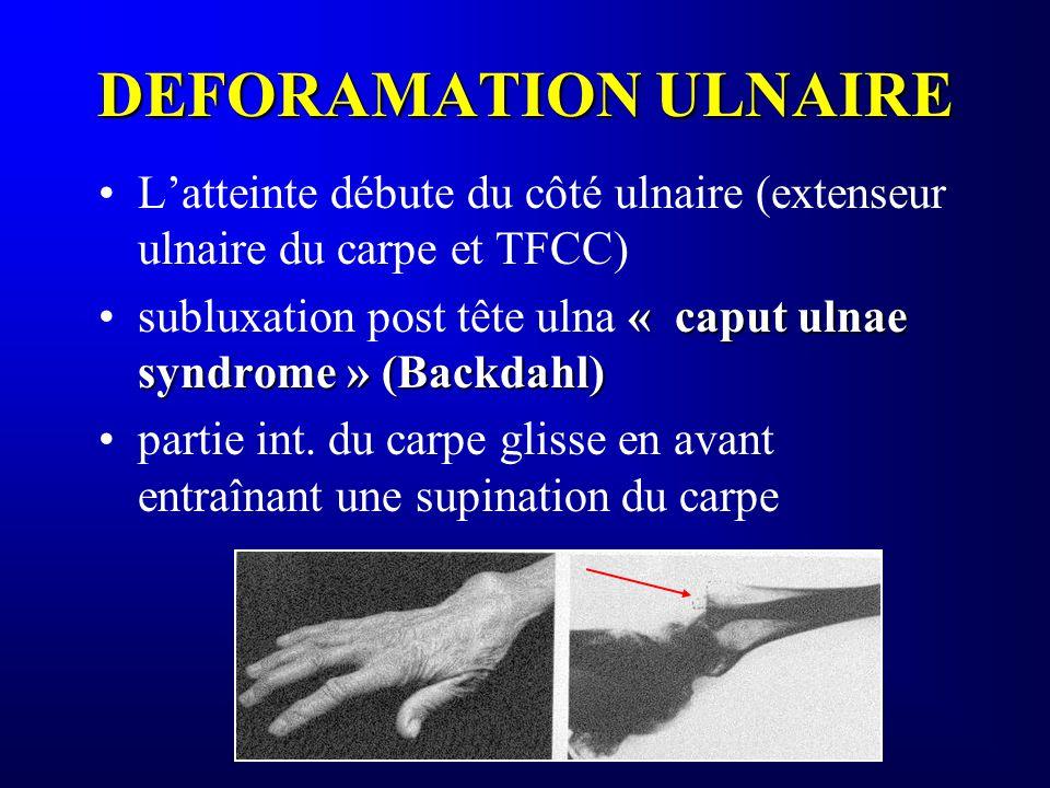 DEFORAMATION ULNAIRE L'atteinte débute du côté ulnaire (extenseur ulnaire du carpe et TFCC)