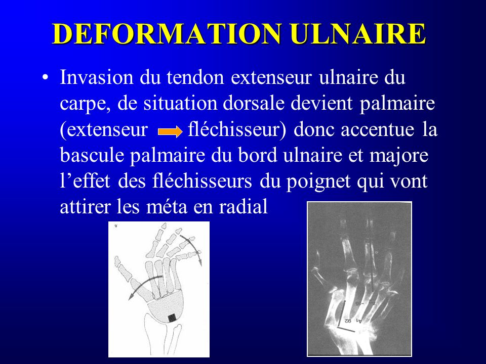 DEFORMATION ULNAIRE