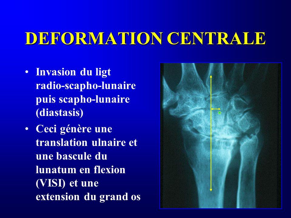 DEFORMATION CENTRALE Invasion du ligt radio-scapho-lunaire puis scapho-lunaire (diastasis)