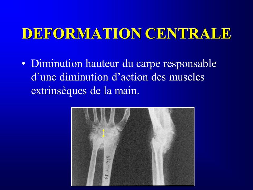 DEFORMATION CENTRALE Diminution hauteur du carpe responsable d'une diminution d'action des muscles extrinsèques de la main.