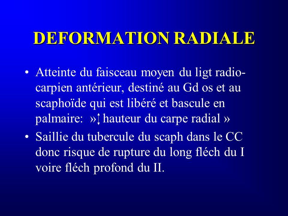 DEFORMATION RADIALE