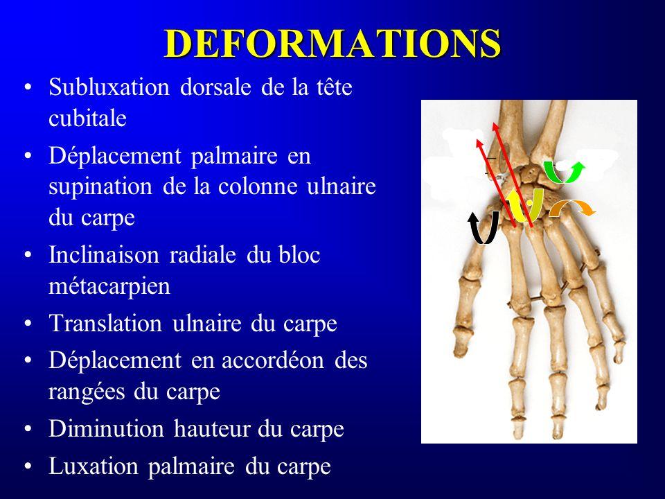 DEFORMATIONS Subluxation dorsale de la tête cubitale