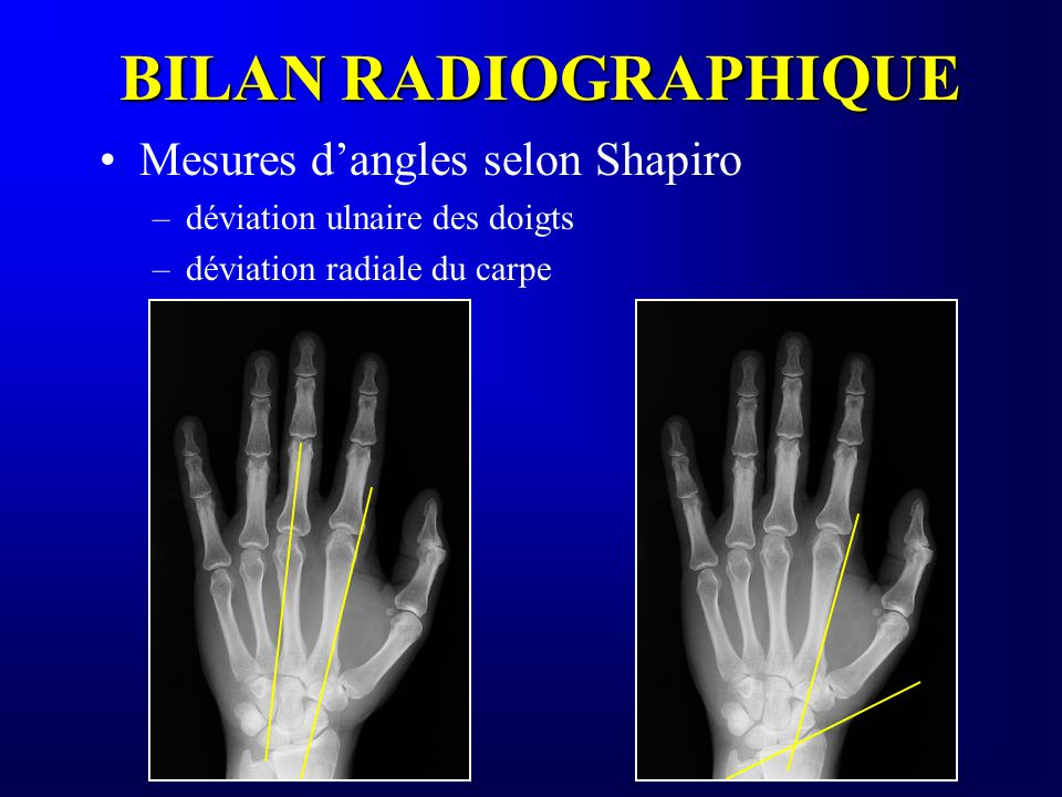 BILAN RADIOGRAPHIQUE Mesures d'angles selon Shapiro