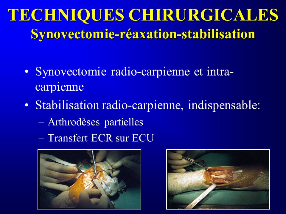 TECHNIQUES CHIRURGICALES Synovectomie-réaxation-stabilisation