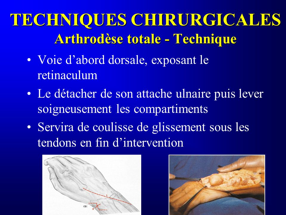 TECHNIQUES CHIRURGICALES Arthrodèse totale - Technique