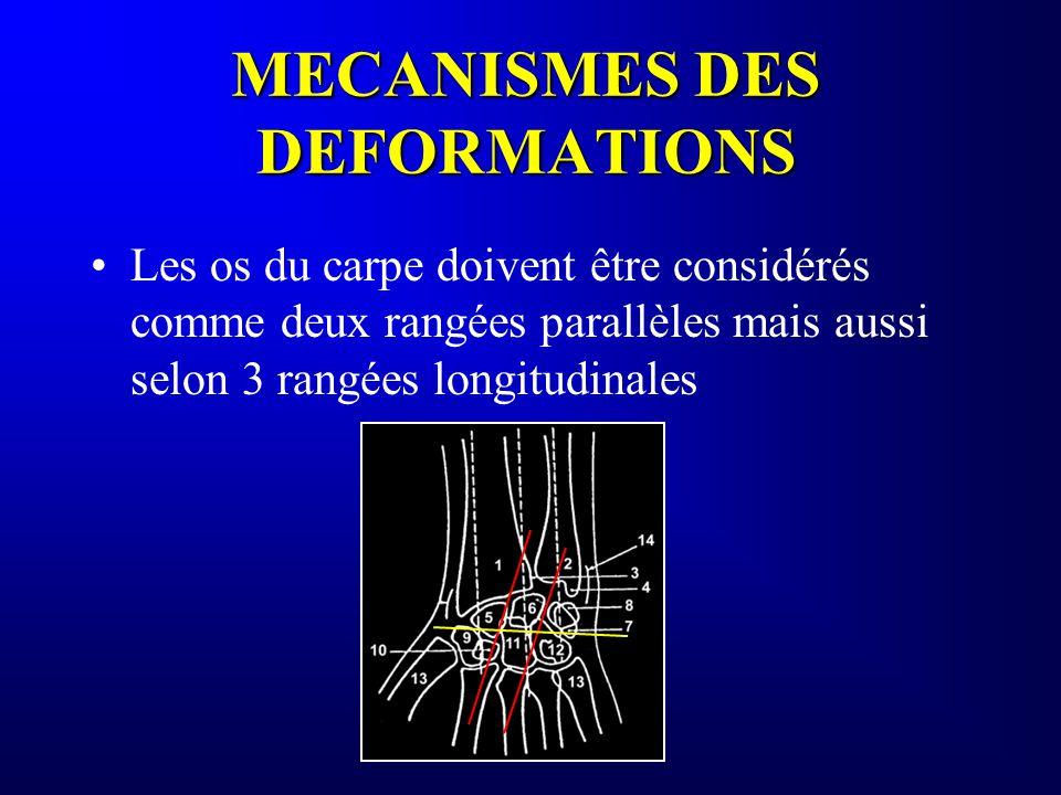 MECANISMES DES DEFORMATIONS