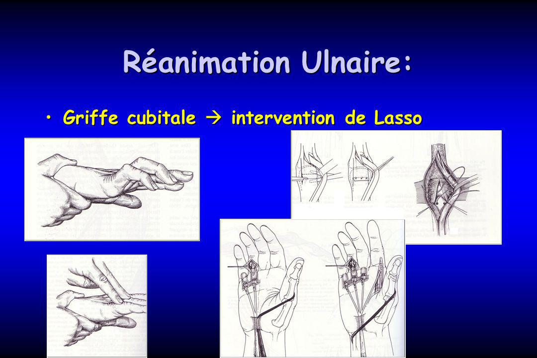 Réanimation Ulnaire: Griffe cubitale  intervention de Lasso