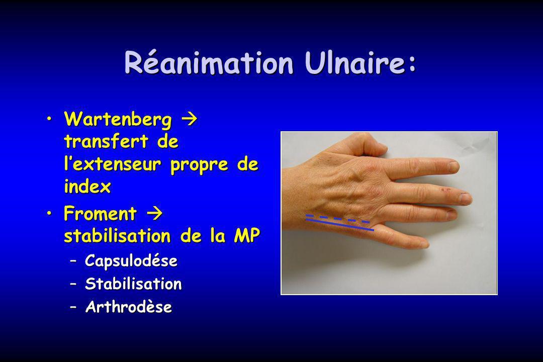 Réanimation Ulnaire: Wartenberg  transfert de l'extenseur propre de index. Froment  stabilisation de la MP.
