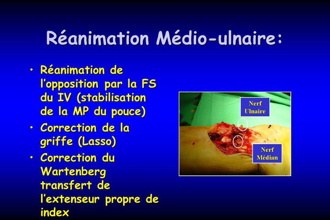 Réanimation Médio-ulnaire: