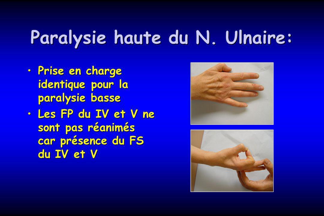 Paralysie haute du N. Ulnaire:
