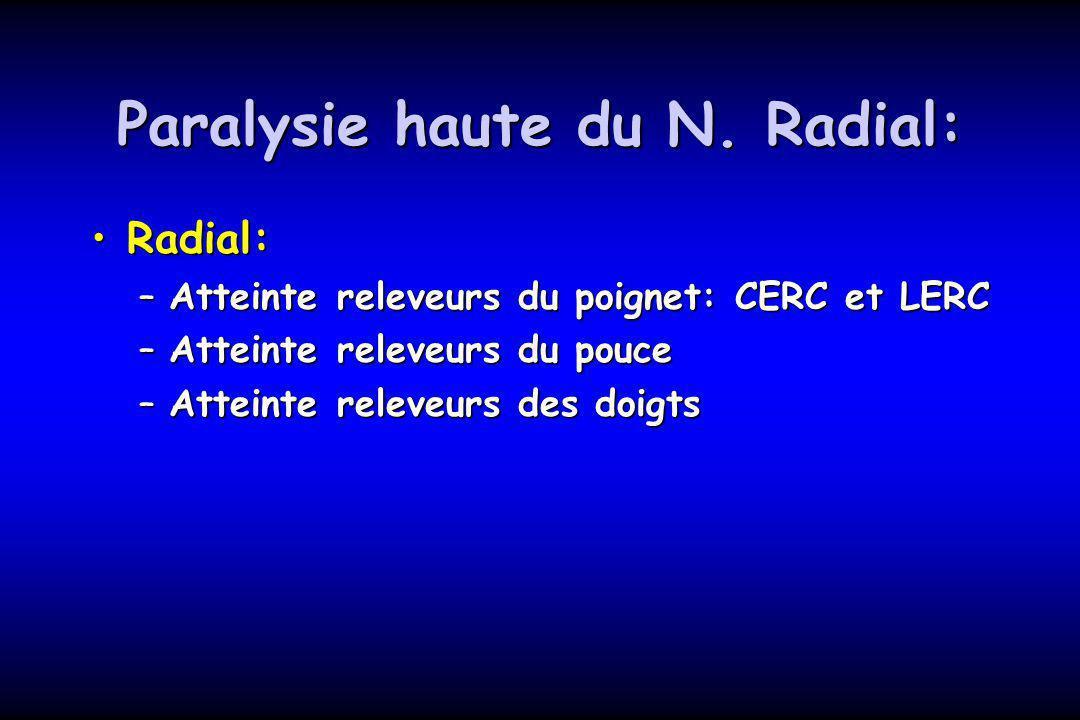 Paralysie haute du N. Radial: