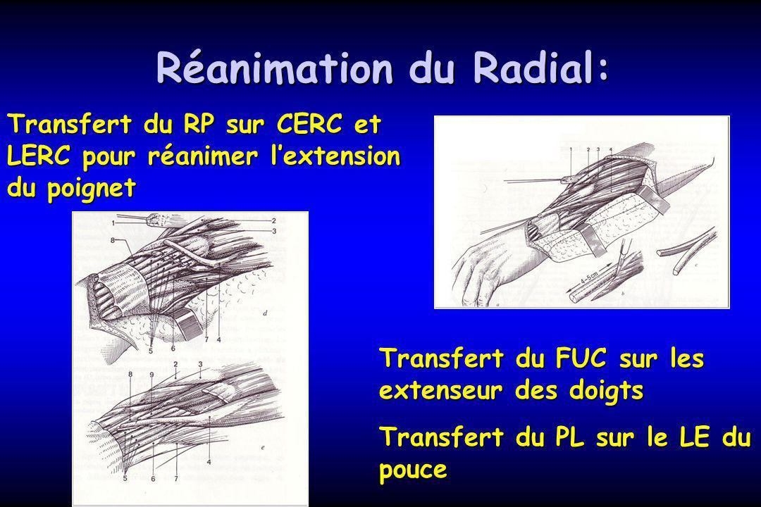Réanimation du Radial: