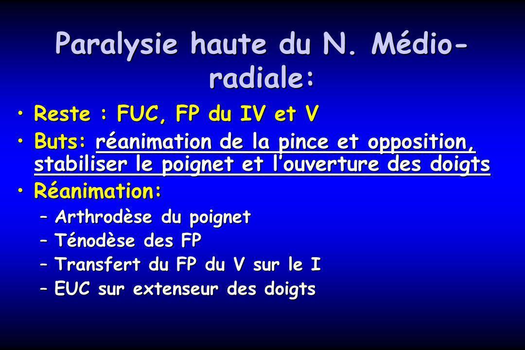 Paralysie haute du N. Médio-radiale: