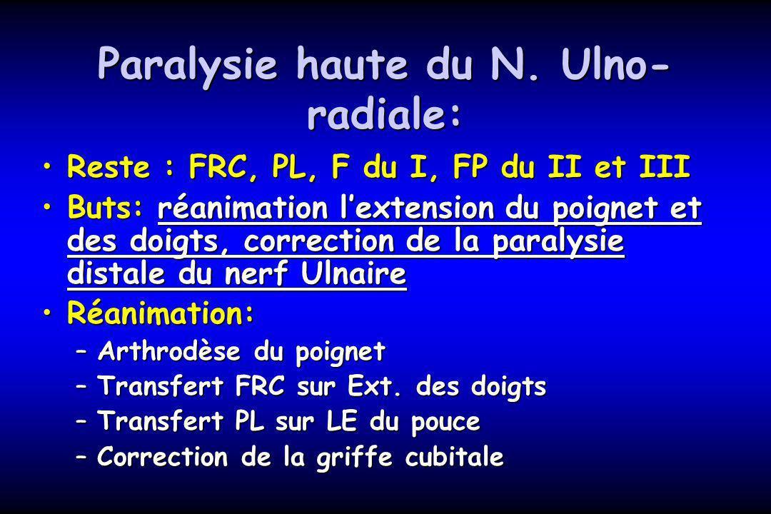 Paralysie haute du N. Ulno-radiale: