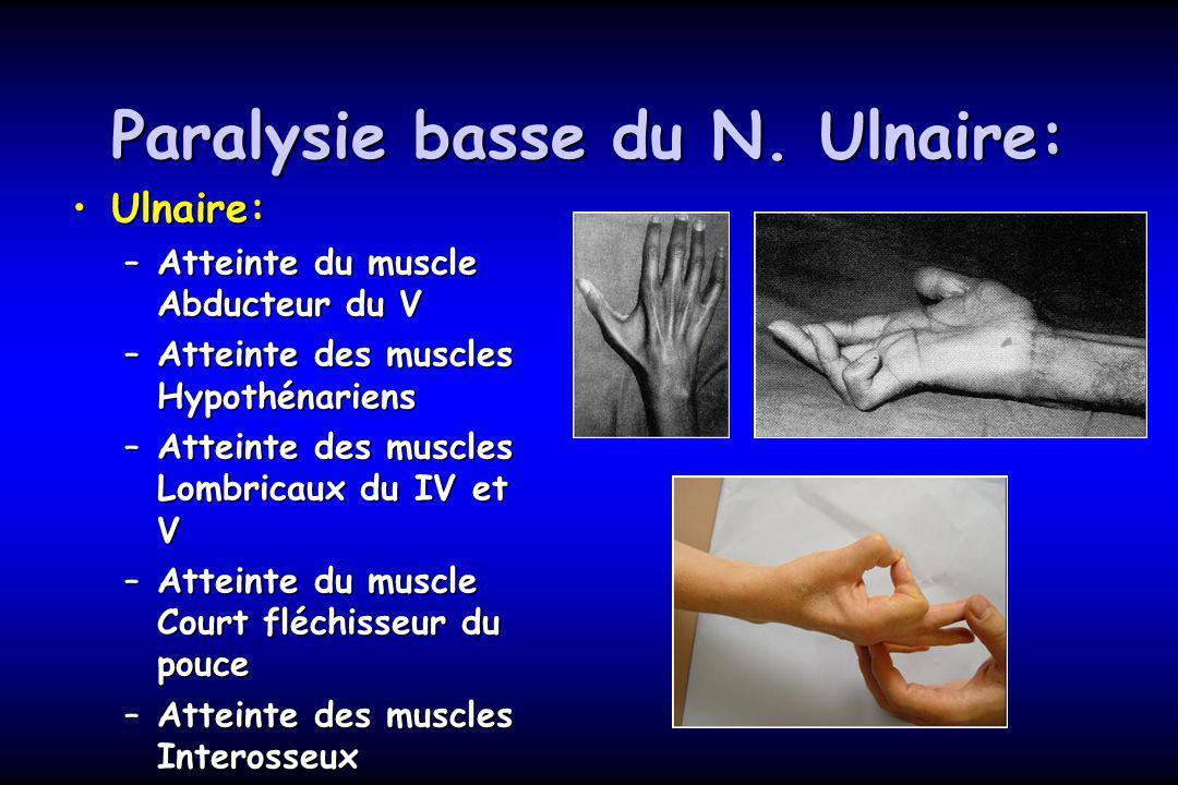 Paralysie basse du N. Ulnaire: