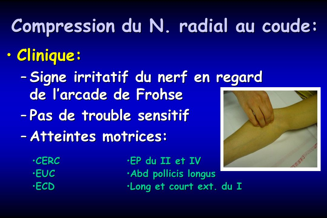 Compression du N. radial au coude: