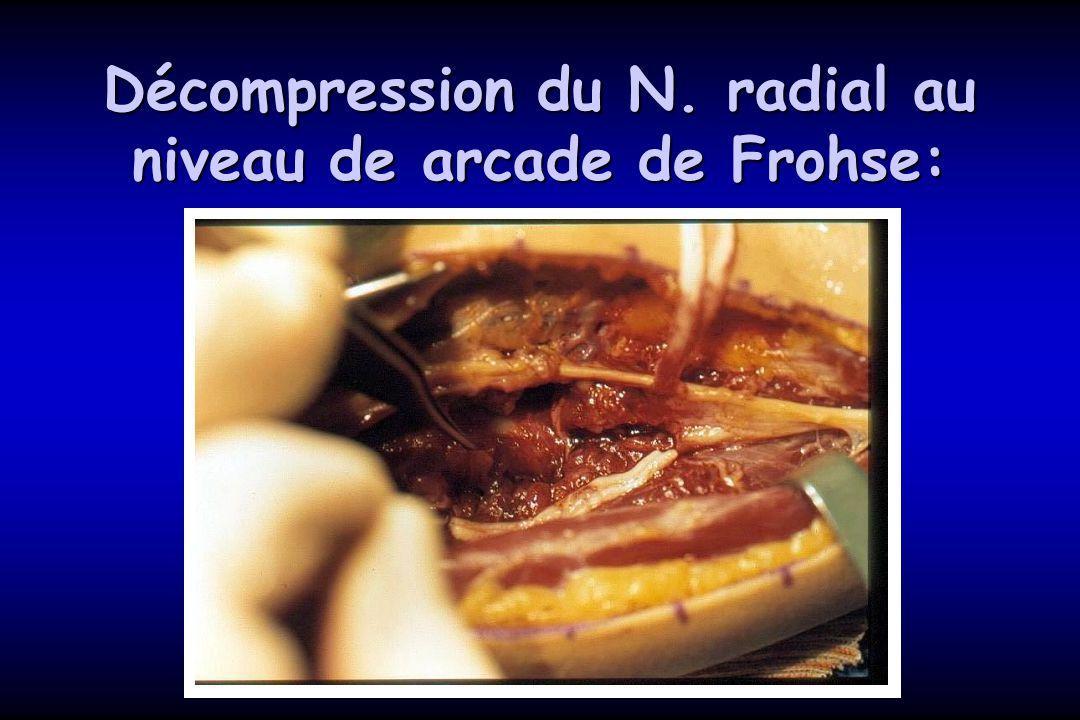 Décompression du N. radial au niveau de arcade de Frohse: