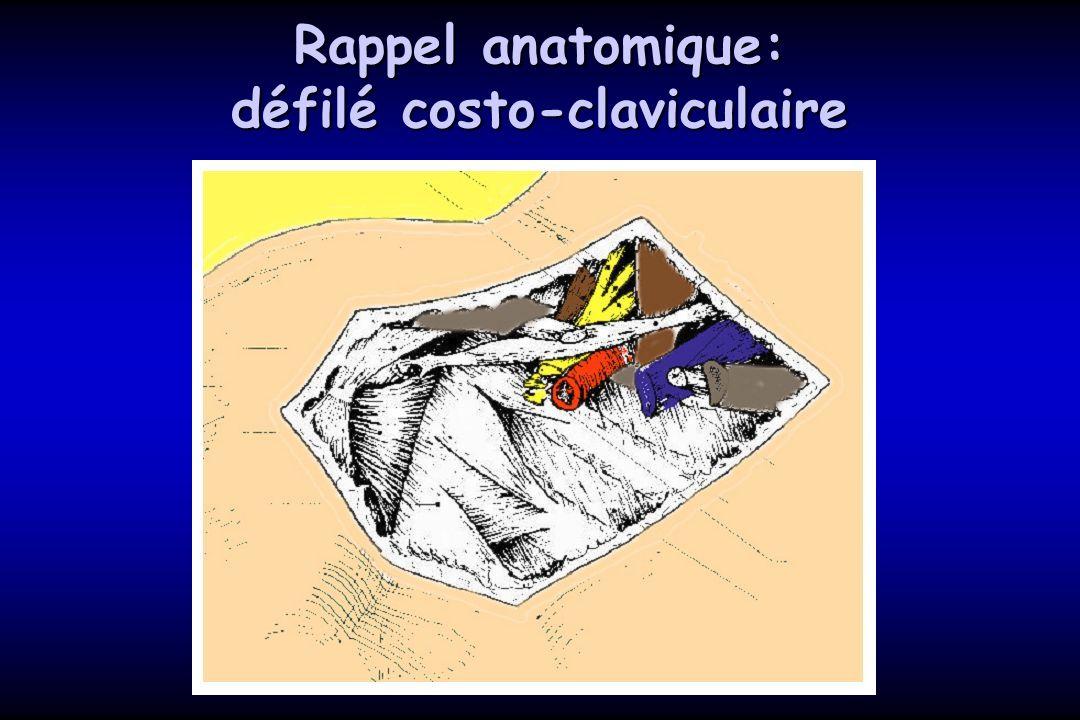 Rappel anatomique: défilé costo-claviculaire