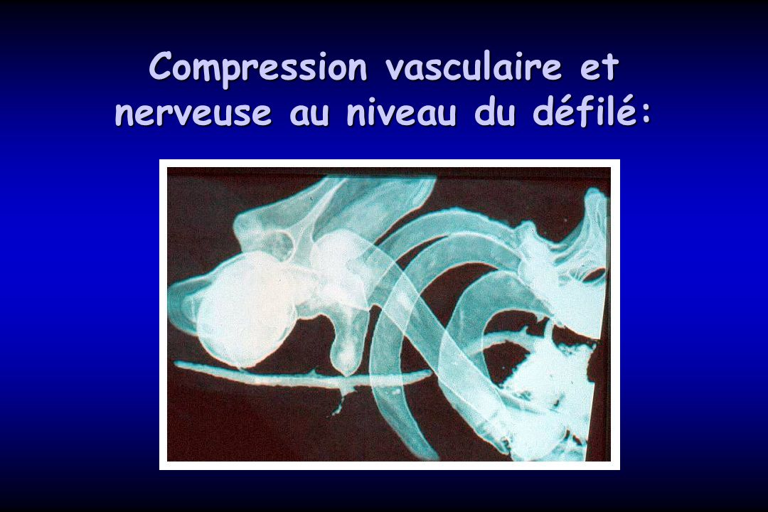 Compression vasculaire et nerveuse au niveau du défilé: