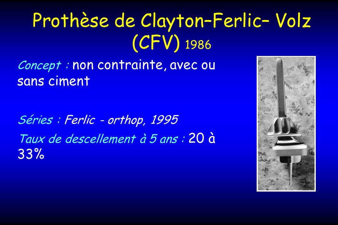 Prothèse de Clayton–Ferlic– Volz (CFV) 1986