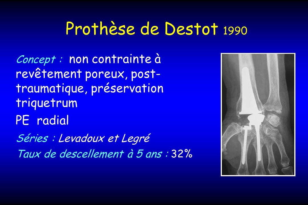 Prothèse de Destot 1990 PE radial