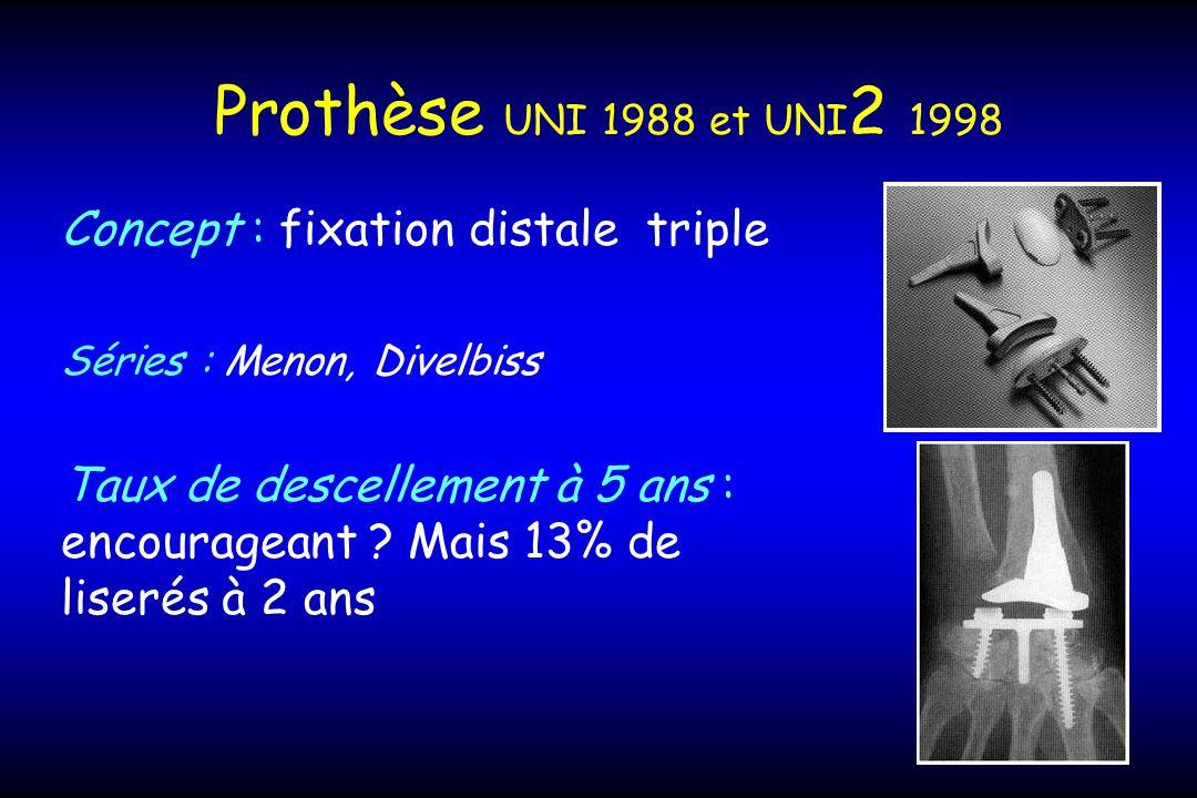 Prothèse UNI 1988 et UNI2 1998 Concept : fixation distale triple