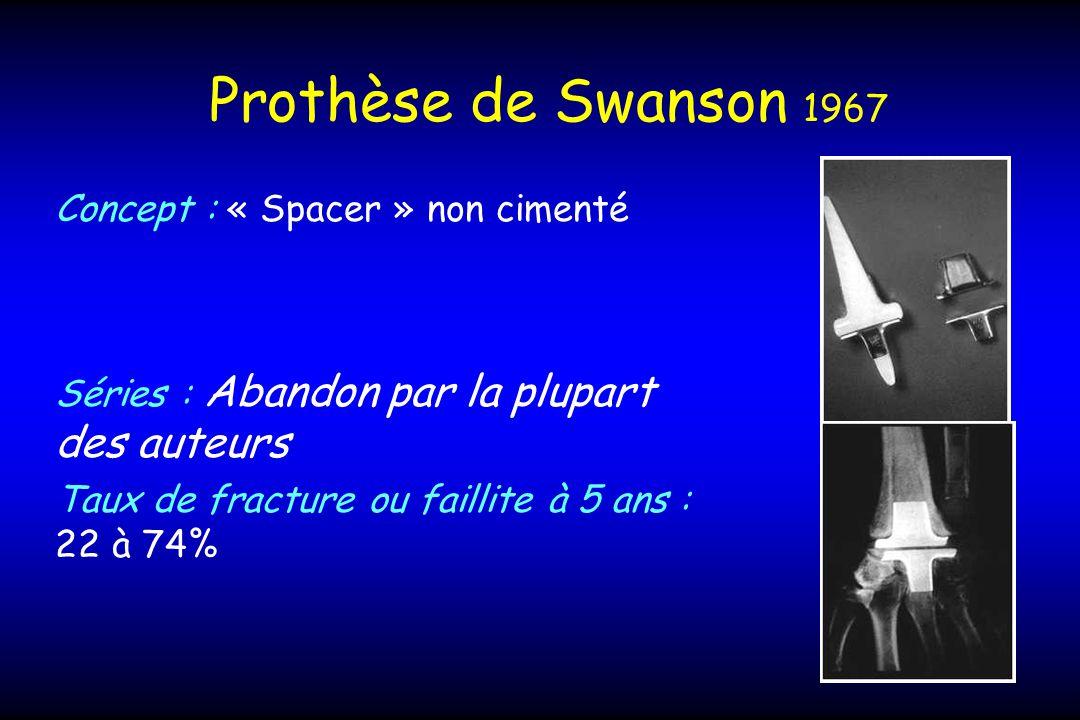 Prothèse de Swanson 1967 Concept : « Spacer » non cimenté