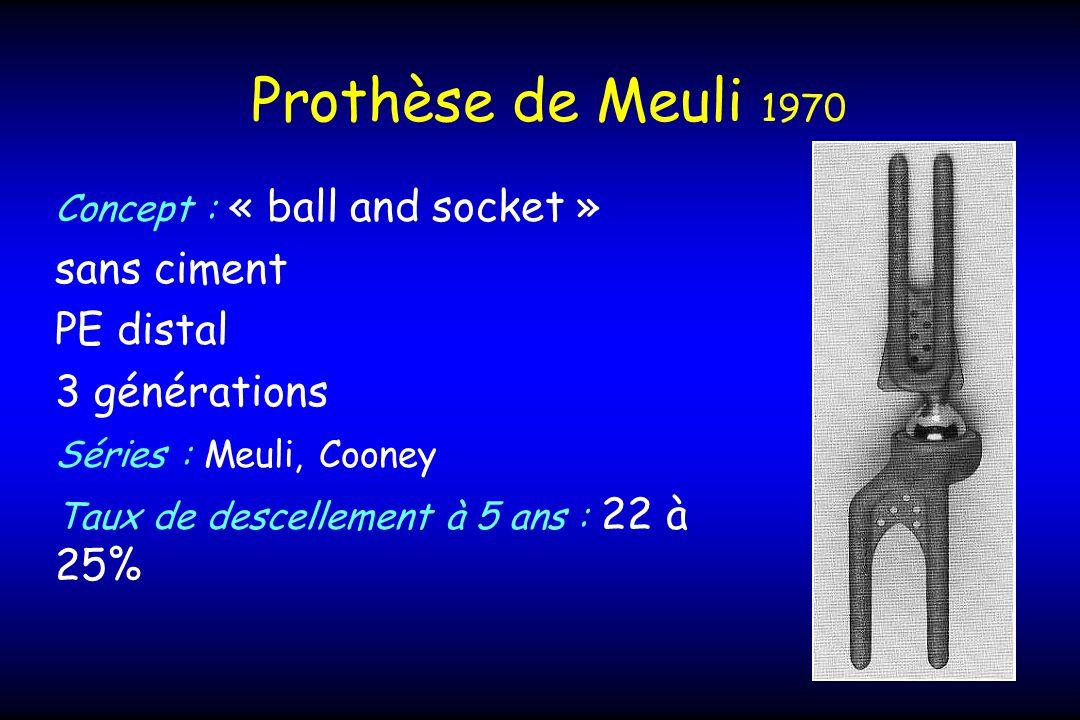 Prothèse de Meuli 1970 sans ciment PE distal 3 générations