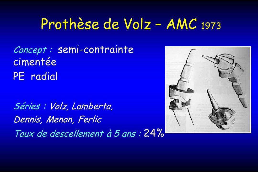 Prothèse de Volz – AMC 1973 PE radial