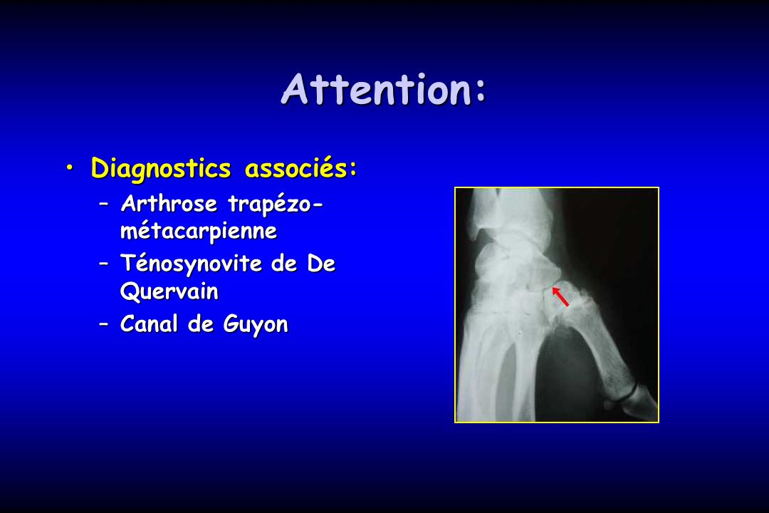 Attention: Diagnostics associés: Arthrose trapézo-métacarpienne