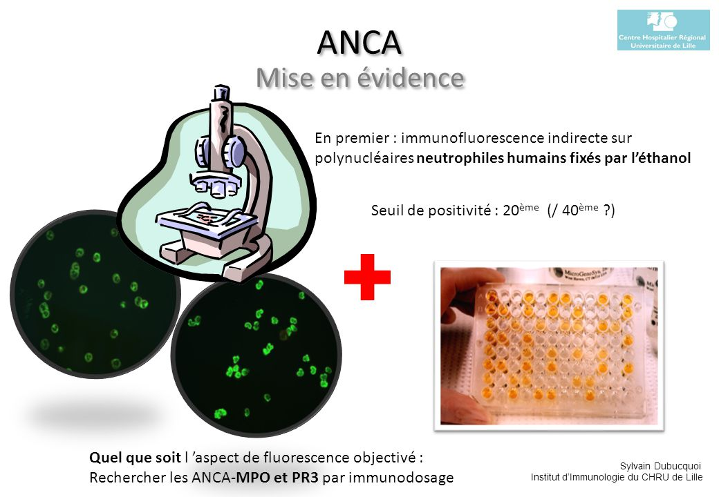 ANCA Mise en évidence En premier : immunofluorescence indirecte sur