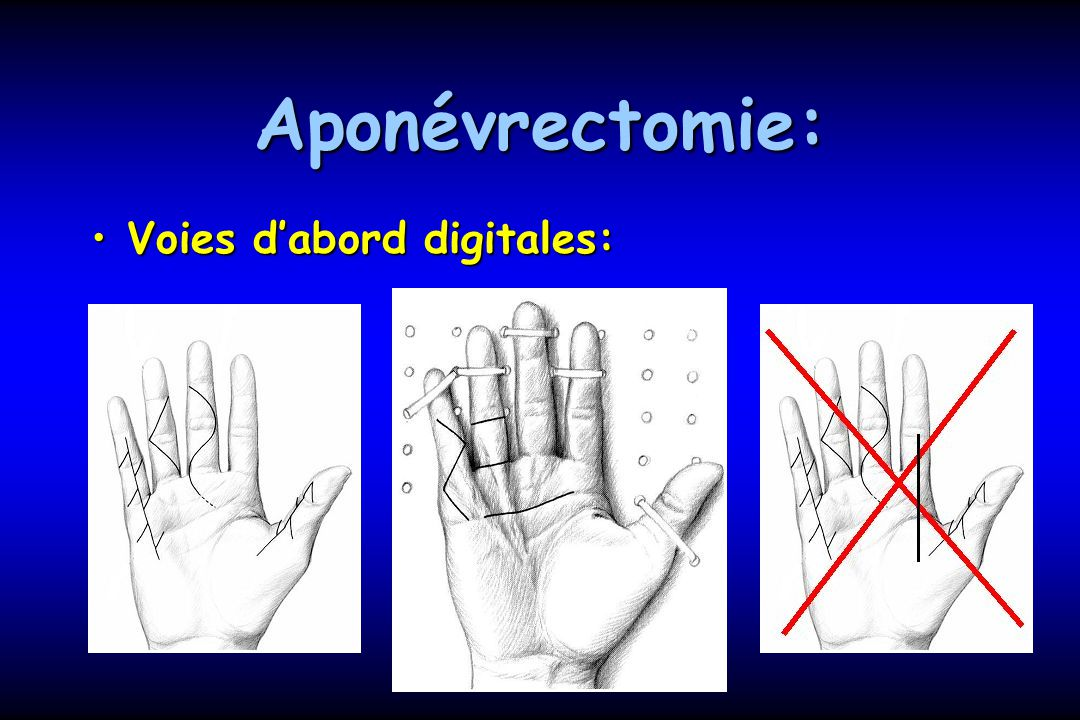 Aponévrectomie: Voies d'abord digitales: