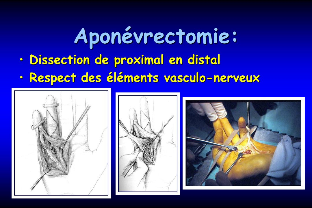 Aponévrectomie: Dissection de proximal en distal