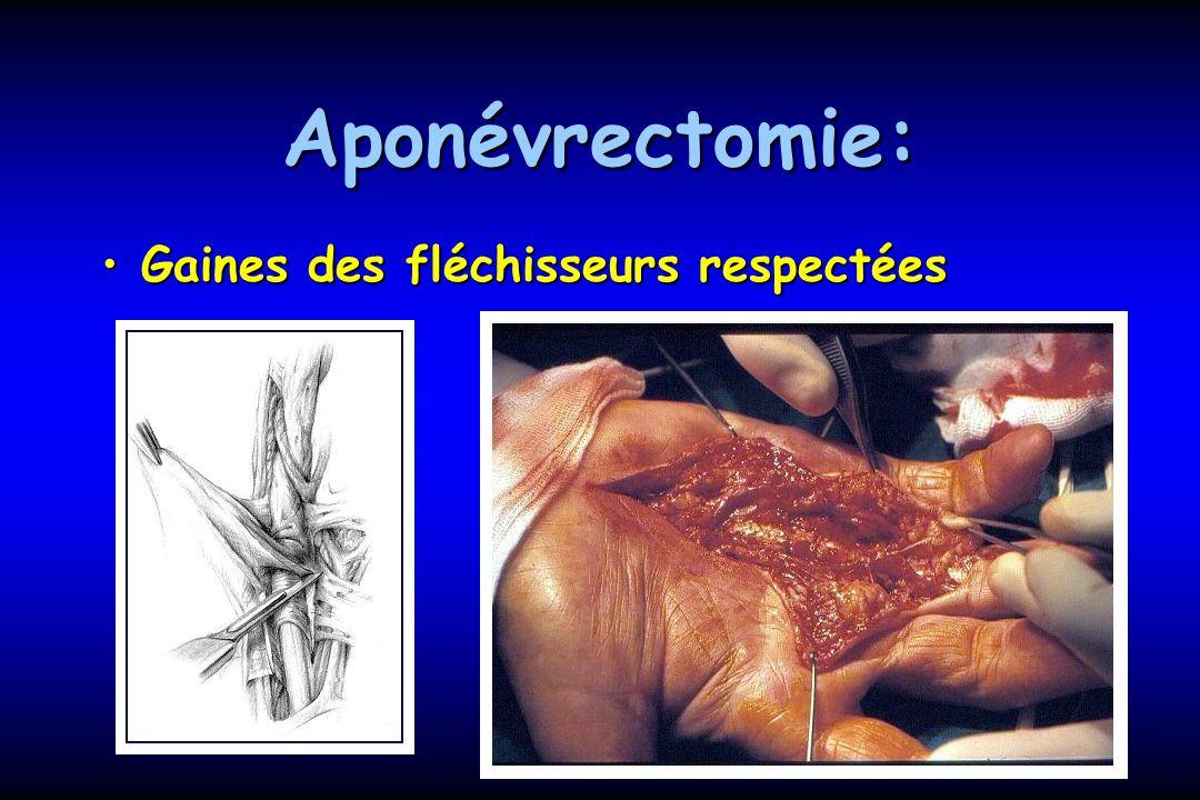 Aponévrectomie: Gaines des fléchisseurs respectées