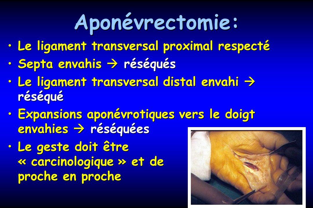 Aponévrectomie: Le ligament transversal proximal respecté
