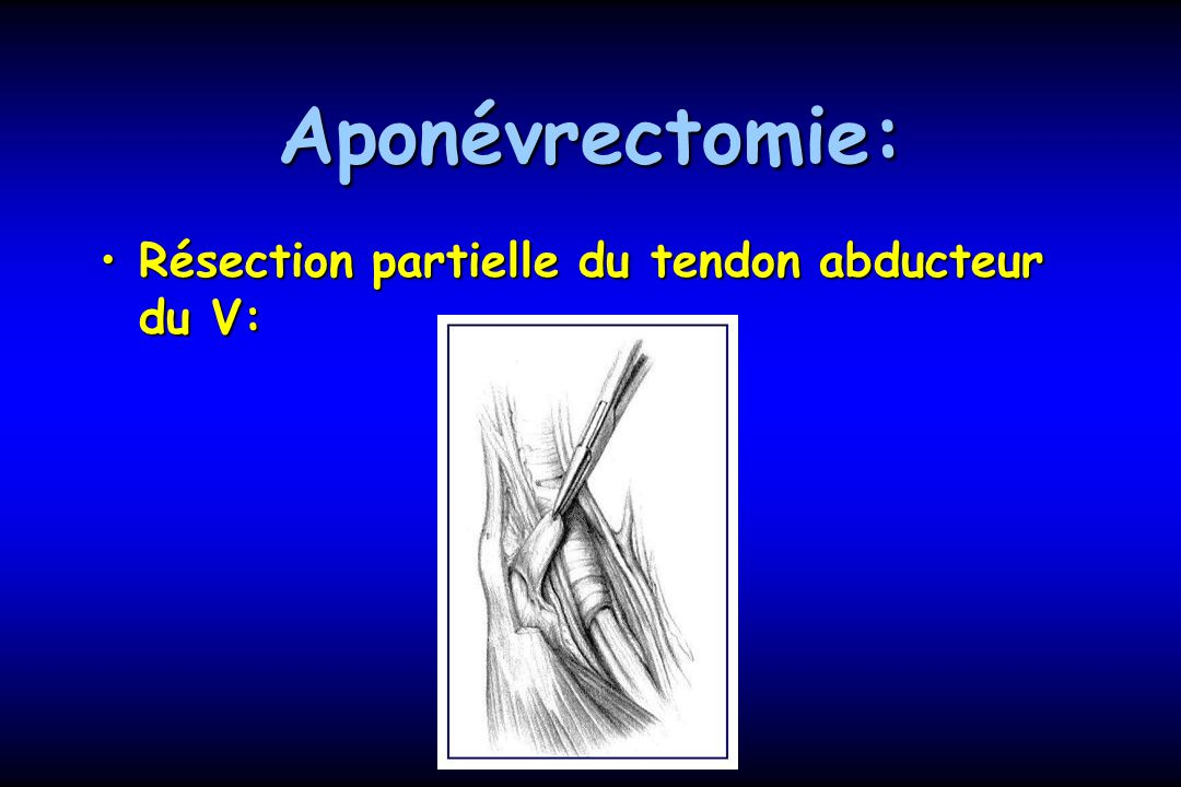 Aponévrectomie: Résection partielle du tendon abducteur du V:
