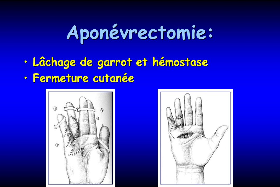 Aponévrectomie: Lâchage de garrot et hémostase Fermeture cutanée