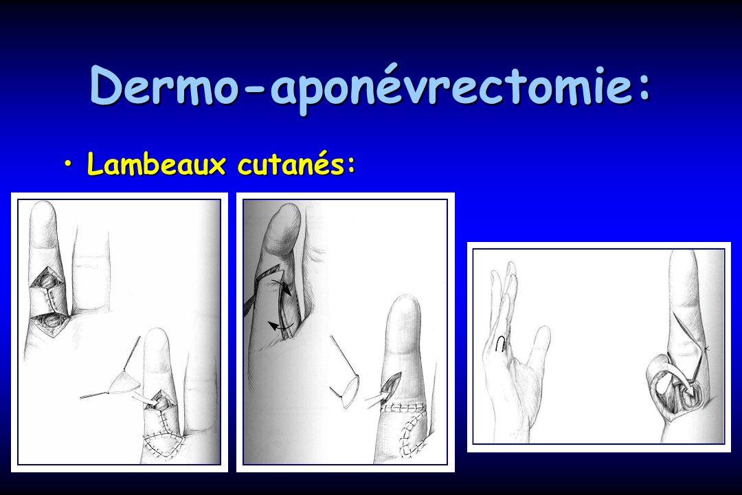 Dermo-aponévrectomie: