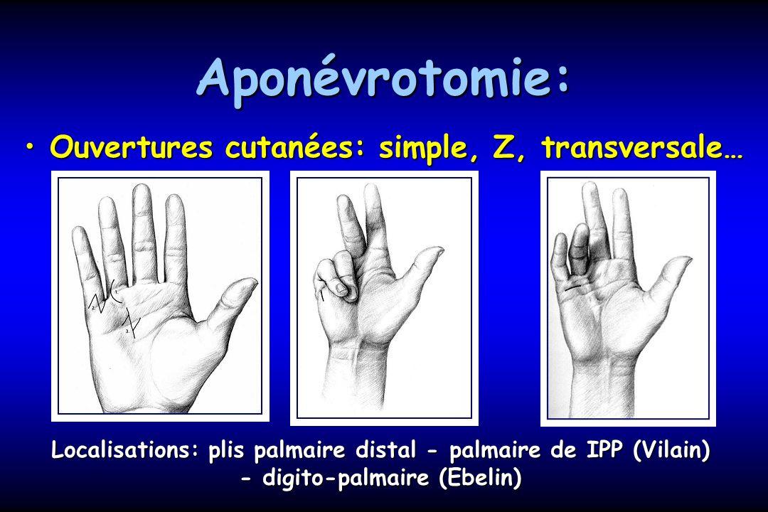 Aponévrotomie: Ouvertures cutanées: simple, Z, transversale…