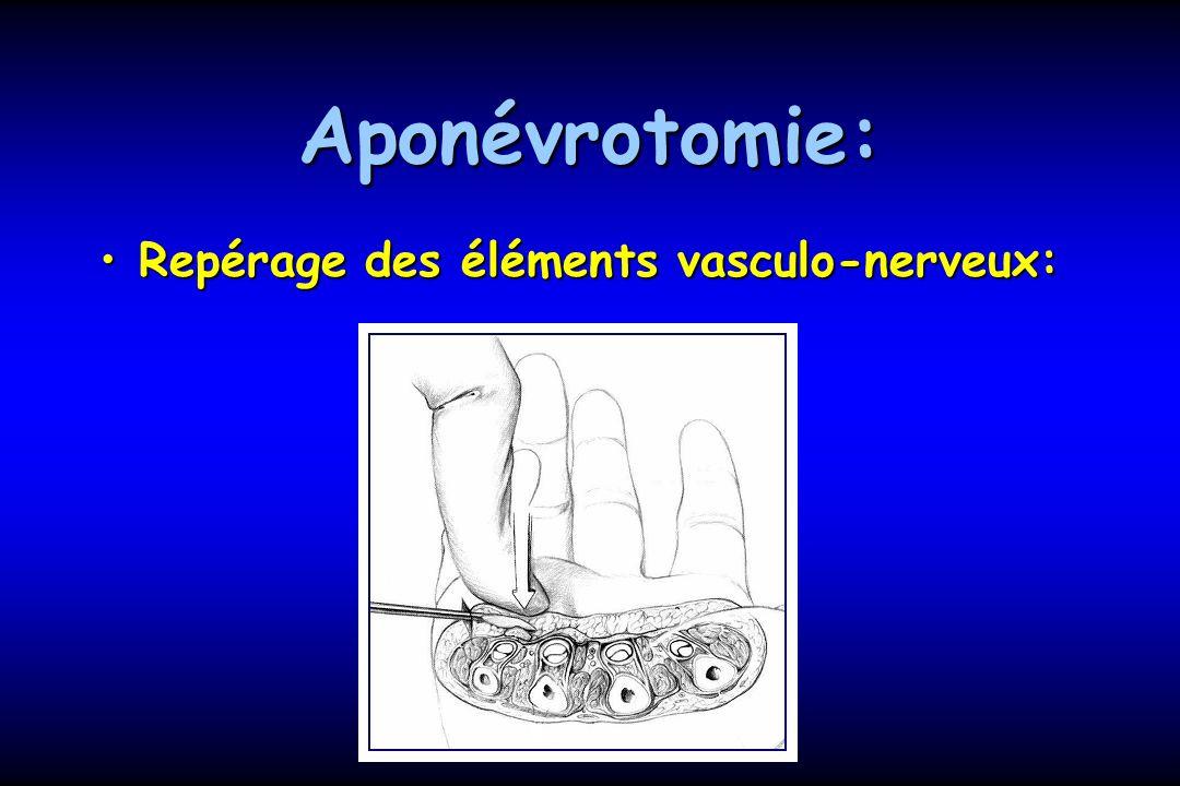 Aponévrotomie: Repérage des éléments vasculo-nerveux: