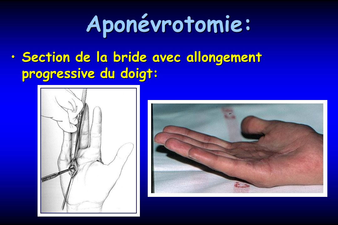 Aponévrotomie: Section de la bride avec allongement progressive du doigt: