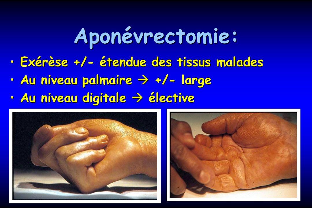 Aponévrectomie: Exérèse +/- étendue des tissus malades