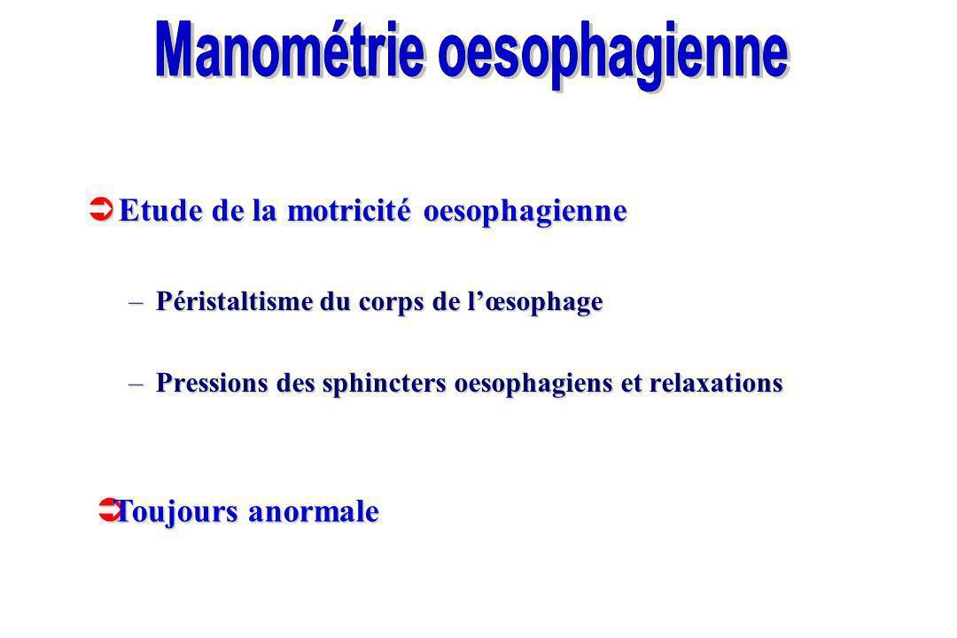 Manométrie oesophagienne