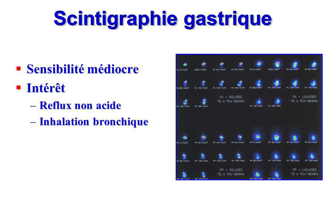 Scintigraphie gastrique