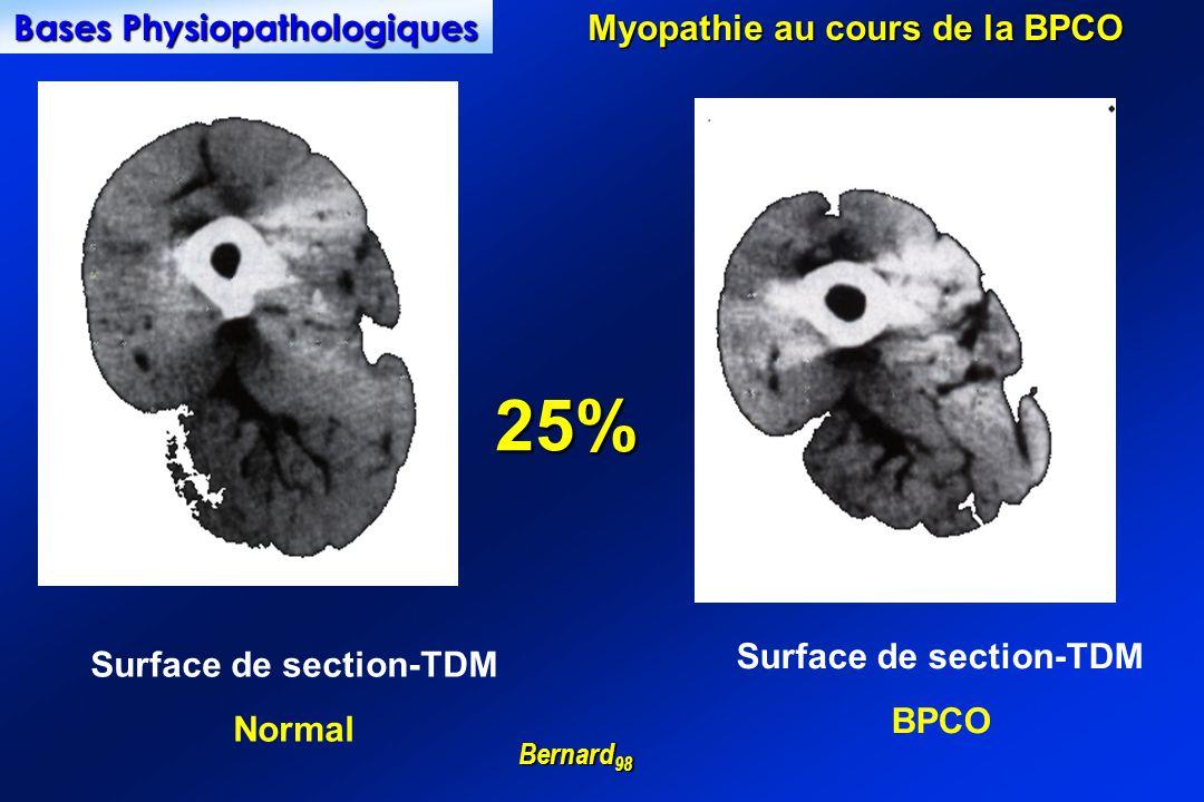 25% Bases Physiopathologiques Myopathie au cours de la BPCO