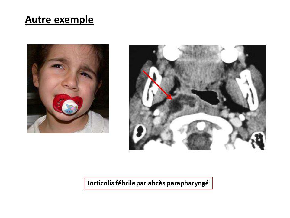 Autre exemple Torticolis fébrile par abcès parapharyngé